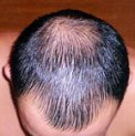Male Baldness
