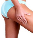 http://guide2herbalremedies.com/wp-content/uploads/2010/05/Cellulite.jpg